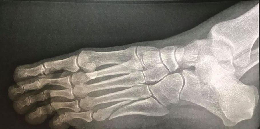 fracture du pied